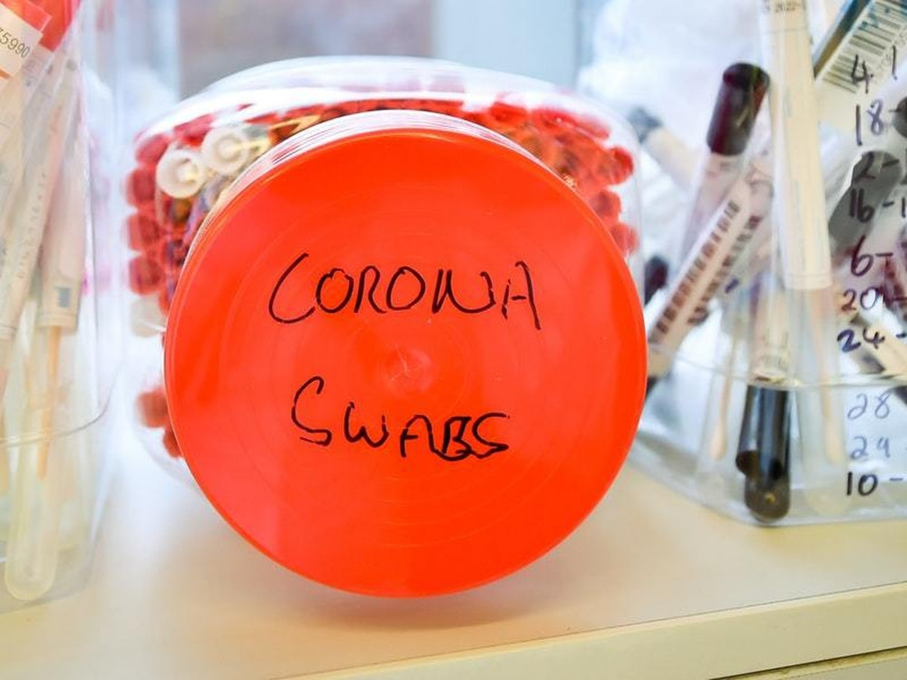 Age is not the only risk for severe coronavirus disease