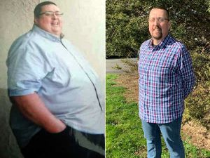 Jason Parrish before and after his dramatic weight loss surgery