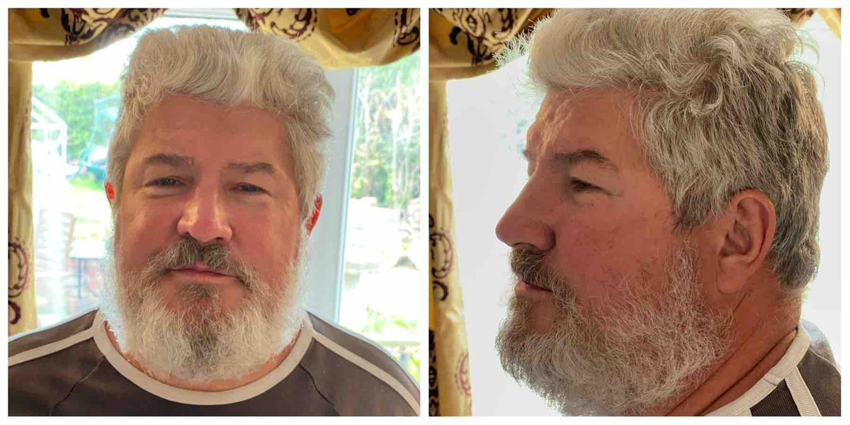 Allcare Shropshire manager Martin Beesley is shaving off his hair and beard for charity