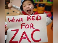 We turned red for Zac too - here's why