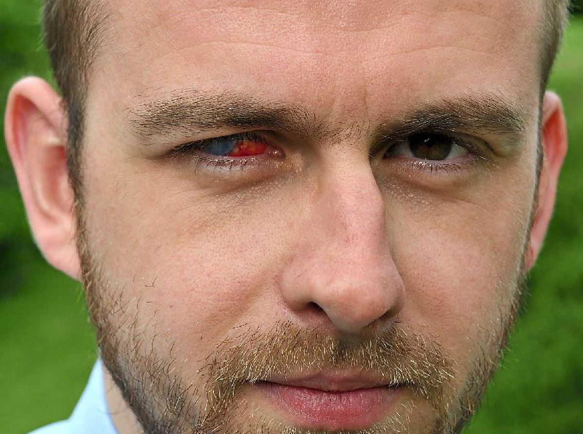 Nick Humphreys was left blind in one eye by a bacteria found in shower water