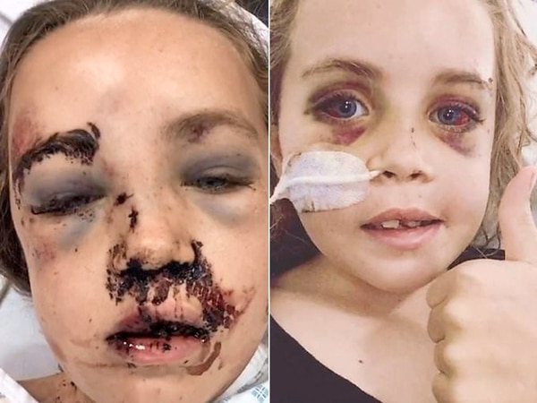 WATCH: Shropshire bike accident girl's video is an internet hit