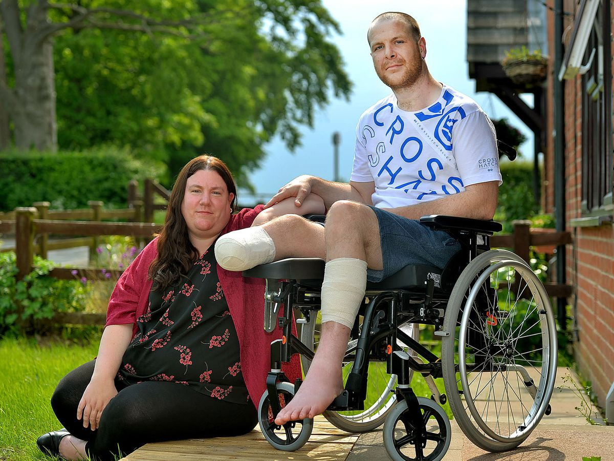 Rob Stubbs lost his leg below the knee after an incident at a sawmill in Ellesmere