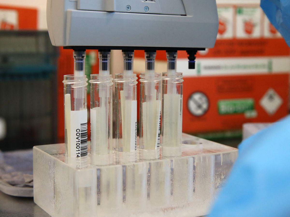 Coronavirus swabs in a laboratory