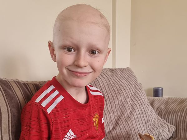 Kayden Royle struggled with alopecia