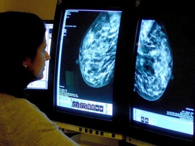 Nearly 4,000 breast cancer screening invitations missed in 2016, Tories reveal