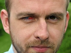 My fight for sight: Why Star reporter Nick will never wear contact lenses again