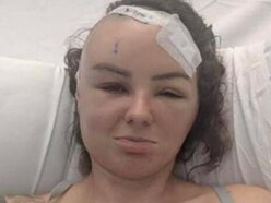 Appeal launched to help woman diagnosed with brain tumour after eye test