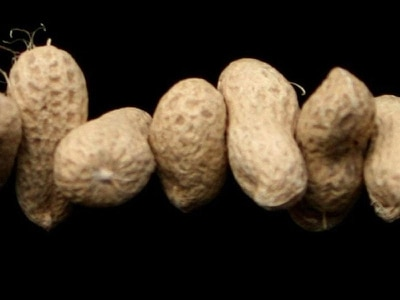 Peanut allergies affected by exercise and sleep deprivation, study suggests