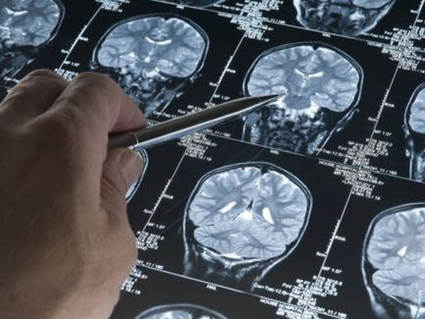 Support plea after dramatic rise in dementia cases in five years