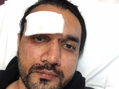 'This guy was like an animal': Go Carz taxi driver beaten in suspected racist attack