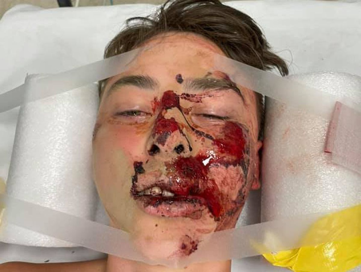 Tudor Bevan-Jones, 15, in hospital after falling off his bike