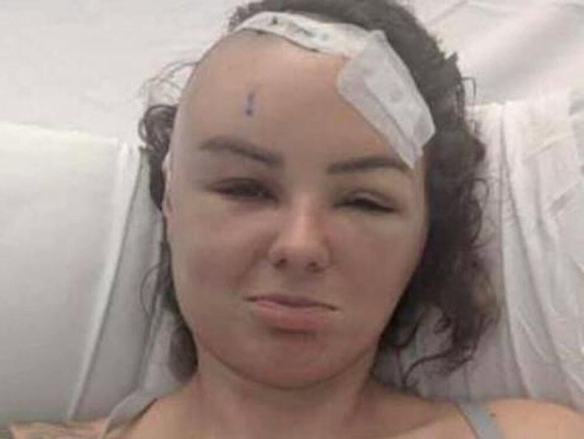 Christel in hospital
