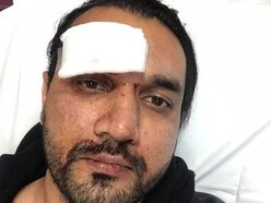 Police in new appeal over attack on Telford taxi driver