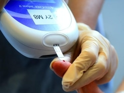 Blood test could predict how well prostate cancer patients respond to treatment